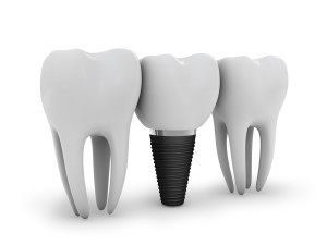 tooth implant, and two molars on white background