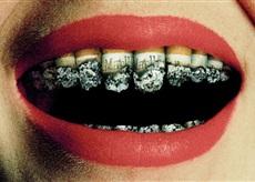 smokerteeth