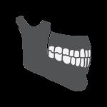 weakened jawbone