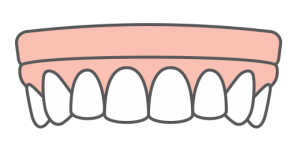 icon of full-arch implant-supported dentures