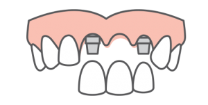 icon of implant-supported bridge