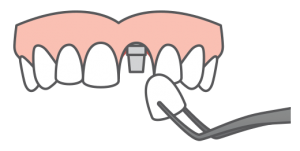 icon of single dental implant
