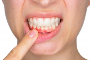 woman pressing down lip with her finger to point out that she has gum disease